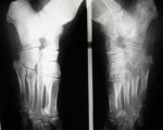 Algodystrophie du pied gauche (radiographies des pieds)