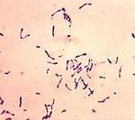 Corynebacterium diphtheriae ou bacille de Löffler-Klebs