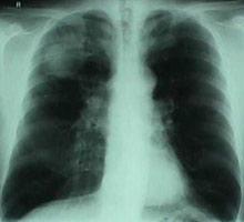 Emphysème pulmonaire