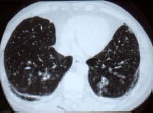 Asbestosis (fibrosis)