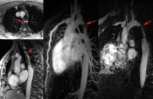 Angio 3D MRI gadolinium aortic coarctation