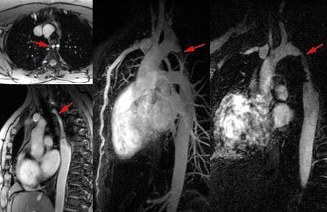 Angio IRM 3D avec gadolinium d'une coarctation aortique