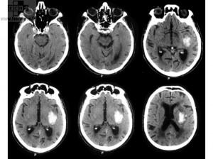 Hemorrhagic Cerebral Vascular Accident