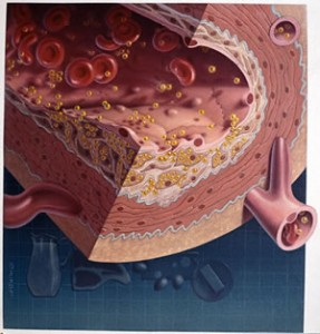 Atherosclerotic plaque - Cholesterol