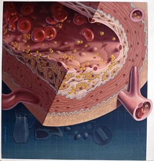 Plaque d'athérome - Cholestérol