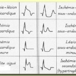 Infarctus du myocarde ECG