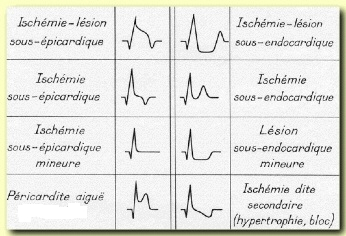 Pathological ECG