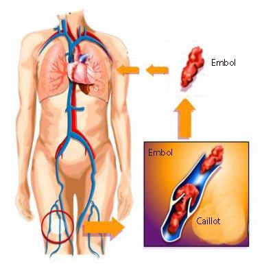 Mécanisme de l'embolie pulmonaire