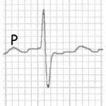 Hémiblocs de branche gauche ECG