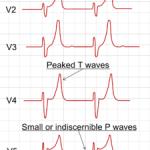 Troubles ioniques ECG
