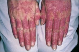 Lupus Hands