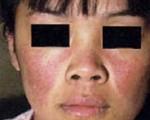 Lupus visage