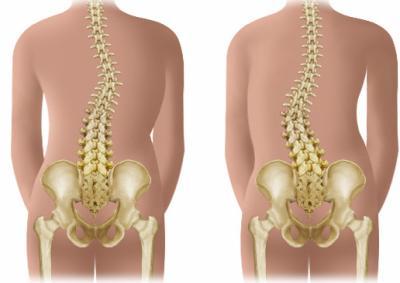 Scoliose idiopathique