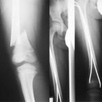 Fractures diaphysaires du membre inférieur