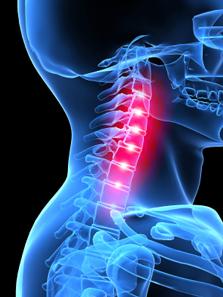Cervical spine trauma