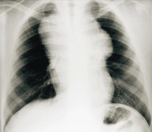 CXR face of a Hodgkin's disease patient reaches demonstrating a large mass polylobée developing in the upper mediastinum. The mediastinal-thoracic ratio D5 / D6 is greater than one third