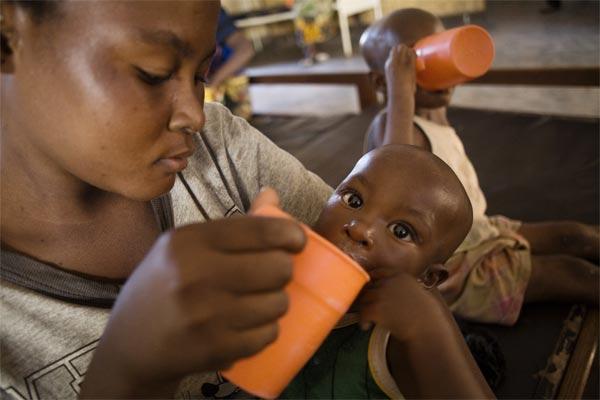 Malnutrition aiguë sévère