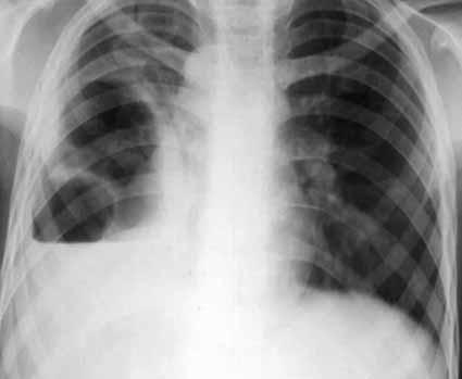 Staphylococcie pleuropulmonaire (Pyopneumothorax)