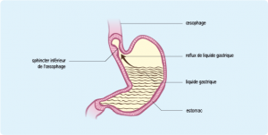 Gastric disorders, stomach and duodenum