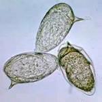 Schistosomiases