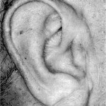 Oblique fold of the ear
