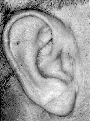 Pli oblique de l'oreille