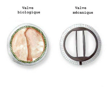 Valve biologique et mecanique