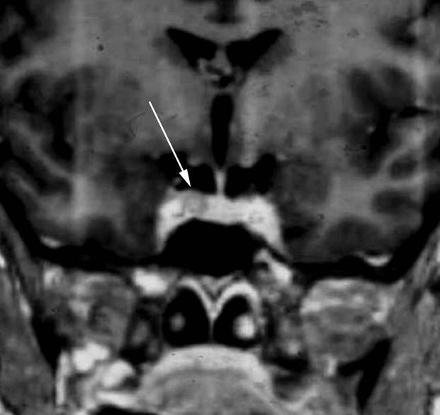 Figure 6 : IRM hypophysaire, coupe coronale, séquence Ti après injection de gadolinium MICROADENOME (flèche) responsable d'un défect de rehaussement dans l'aileron droit de l'antéhypophyse.