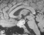 Figure 8 : IRM hypothalamo-hypophysaire, coupe sagittale, séquence Ti après injection de gadolinium CRANIOPHARYNGIOME. Masse supra et intra-sellaire hyperintese avec une expansion vers le haut et l'arrière. A noter l'existence de 2 contingents : un contingent hypointense liquidien et un contingent prenant le contraste, tissulaire. Les calcifications, non individualisables sur cette IRM, sont mieux visualisables au scanner.