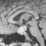 Pituitary MRI
