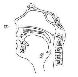 Diagram: receuil mucus