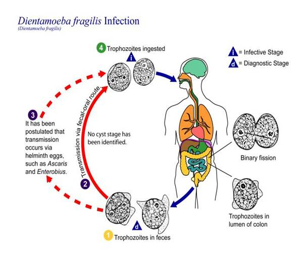 Intestinal protozoan infections (parasitic diarrhea)