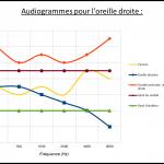 Audiogramme