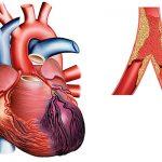 Marqueurs de l'infartus du myocarde – myoglobine, troponines et isoenzyme de la créatine-kinase