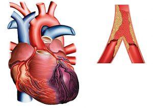 Marqueurs de l'infartus du myocarde - myoglobine, troponines et isoenzyme de la créatine-kinase