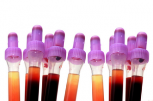 Vitesse de sédimentation des hématies