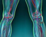 Syndrome de l'artère poplitée piégée