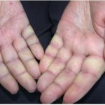 Acrosyndrome vasculaire