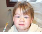 Complications du syndrome néphrotique