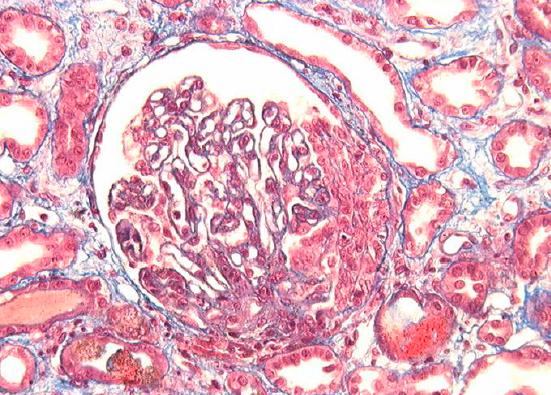 Glomérulonéphrites extracapillaires