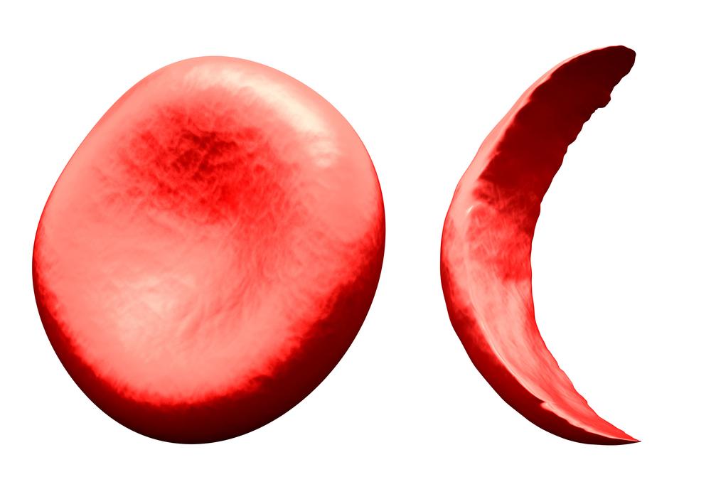 Rein et hémoglobinopathies