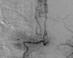 Malformations vasculaires vertébromédullaires