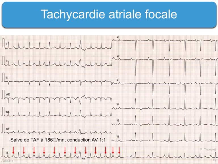 Atrial Flutter and Atrial Tachysystole