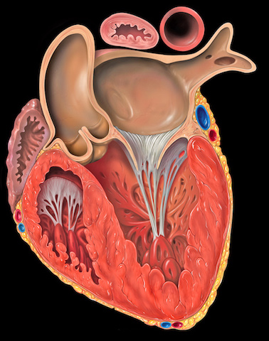 Arrhythmogenic Dystrophy of the Right Ventricle